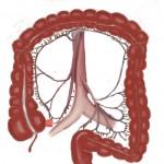 Enfermedad de Crohn y Colitis ulcerosa