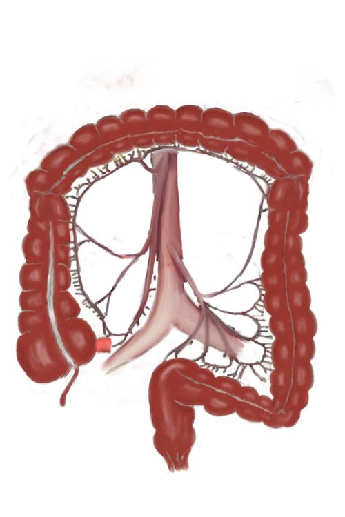 dia europeo de la enfermedad de crohn y la colitis ulcerosa